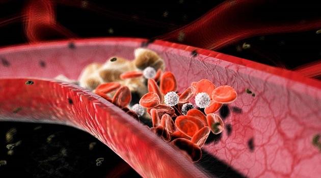 kolor dopler krvnih sudova