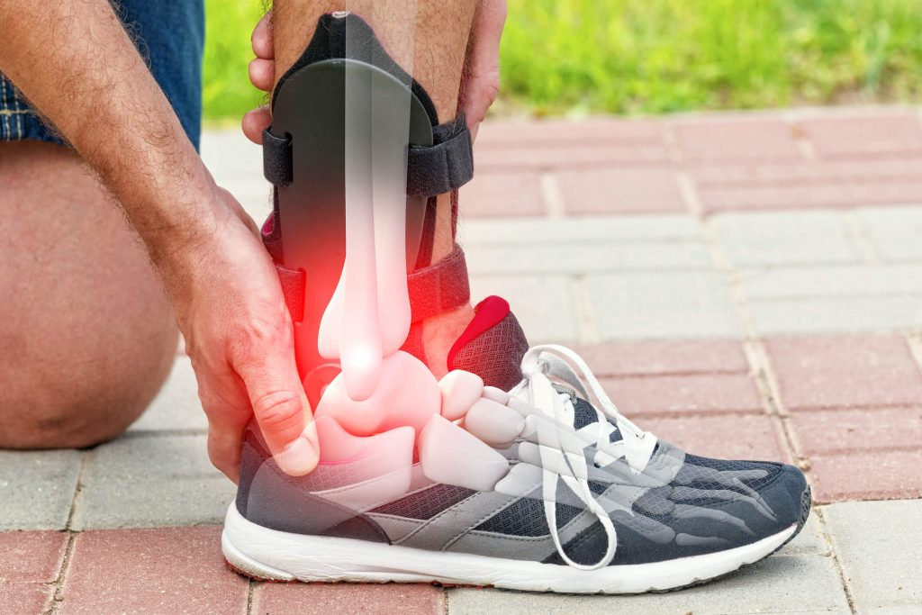 Sportske povrede, obratite se ortopedu na vreme