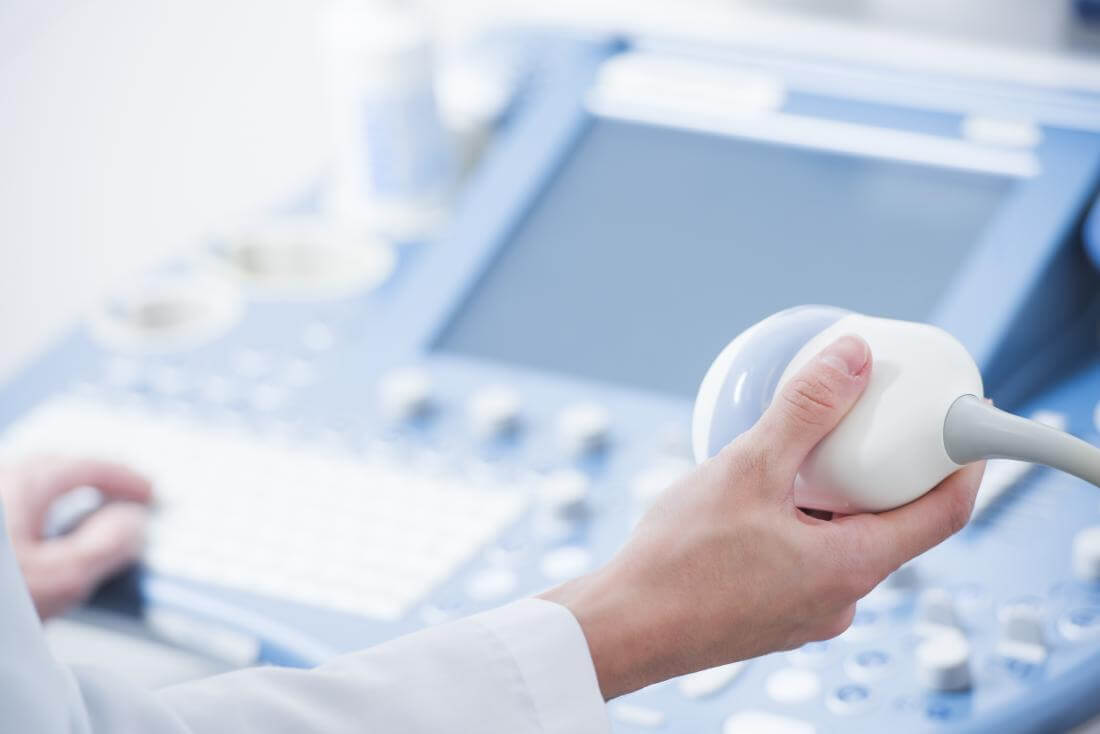 Ultrazvuk kukova beba