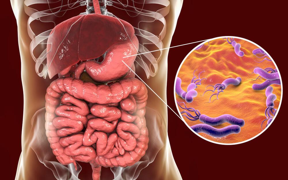 Heliko bakterija - Uzroci nastanka i simptomi